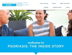 Janssen Psoriasis The Inside Story