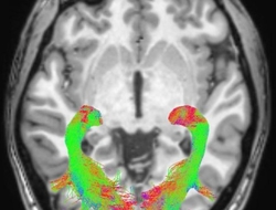 Brain image from Parkinson's study
