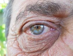 Old eye