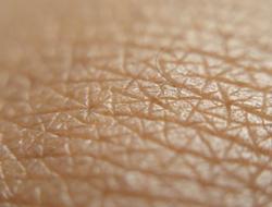 Skin closeup