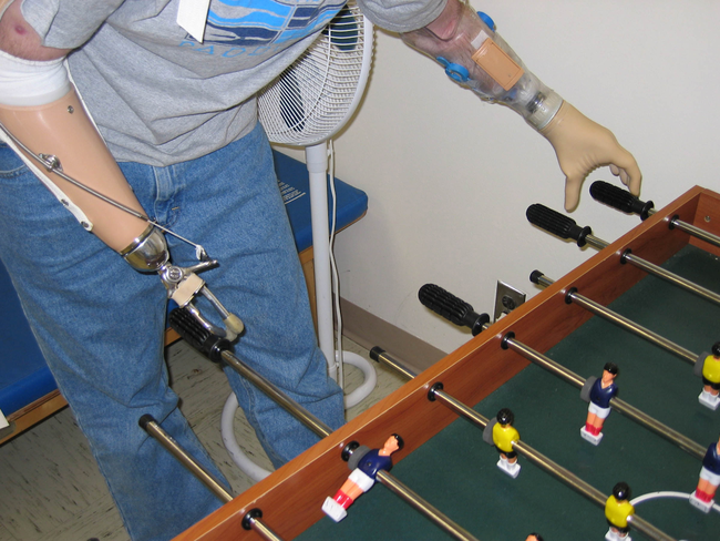 Advances in prosthetics are seeing conventional cable-operated prostheses (left) giving way to myoelectric versions (right